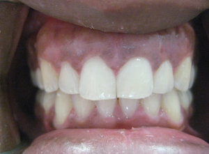 After Invisalign and Veneer (8 months)
