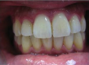 After Invisalign and Veneer (12 months)